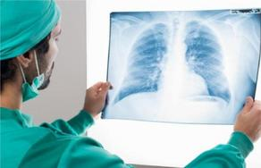 Oncologists name symptom of lung cancer