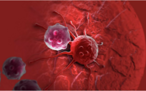 Three simple ways to prevent cancer