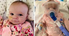 5-месячный младенец победил COVID-19 после 32-дневной комы