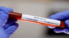 საქართველოში კორონავირუსისგან გამოჯანმრთელებულთა რაოდენობა გაიზარდა