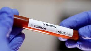 Число инфицированных коронавирусом в Азербайджане достигло 1340