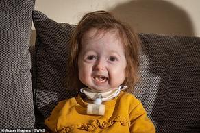 მუტაციამ 2 წლის ბავშვი დააბერა  - PHOTO