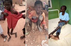 ბავშვი 2 წლის განმავლობაში ბეღელში იყო გამობმული და საკუთარ ფეკალიებს ჭამდა - VIDEO - PHOTO